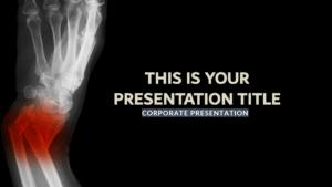 Broken Medical Free Presentation Template regarding Radiology Powerpoint Template